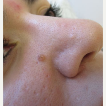 25-34 year old woman treated with Mole Removal
