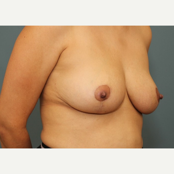 35-44 year old woman requesting a Breast Reduction after 3084508