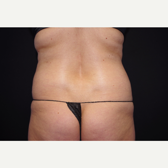 25-34 year old woman treated with Liposuction before 3055053