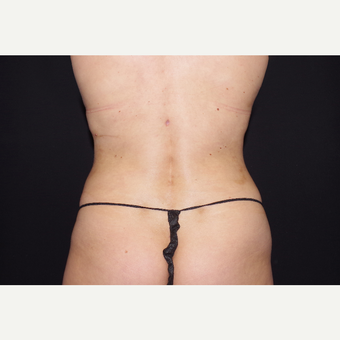 25-34 year old woman treated with Liposuction after 3055053