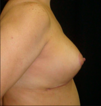 35-44 year old woman treated with Breast Reduction after 3817533