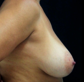35-44 year old woman treated with Breast Reduction before 3817533