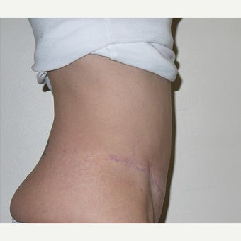 45-54 year old woman treated with Tummy Tuck - Full Abdominoplasty with muscle repair after 1589568