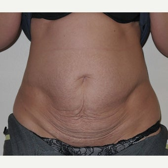 45-54 year old woman treated with Tummy Tuck - Full Abdominoplasty with muscle repair 1589568