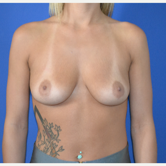 25-34 year old woman treated with Breast Augmentation before 3148373