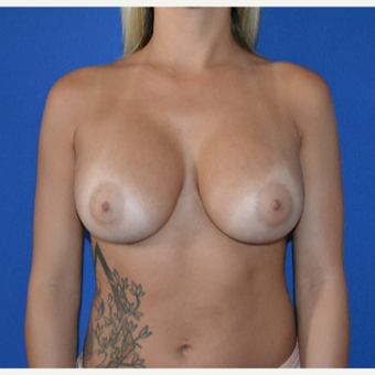 25-34 year old woman treated with Breast Augmentation after 3148373