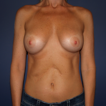 35-44 year old woman treated with Breast Implant Revision before 3439547
