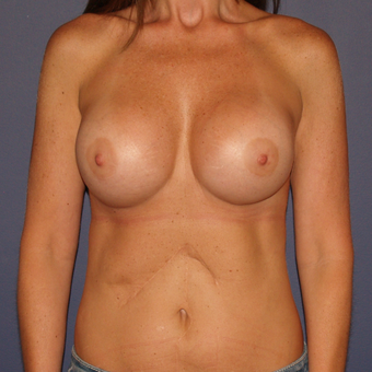 35-44 year old woman treated with Breast Implant Revision after 3439547
