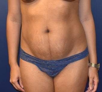 35-44 year old woman treated with Liposuction before 3348723