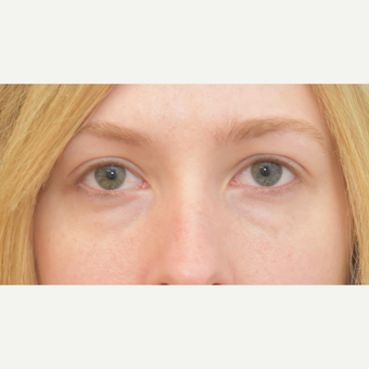 25 year old woman treated with Eye Bags Treatment