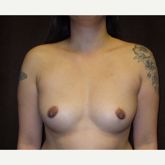 25-34 year old woman treated with Breast Augmentation before 3049381