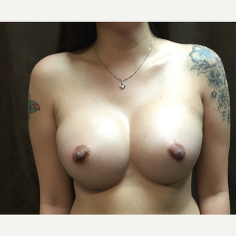 25-34 year old woman treated with Breast Augmentation after 3049381