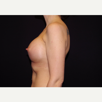 25-34 year old woman treated with Breast Implants after 3441727