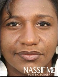 African American Female Rhinoplasty  after 977644