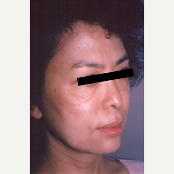 45-54 year old woman treated with Facelift before 3538819
