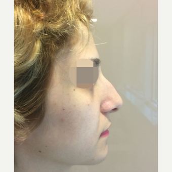 25-34 year old woman treated with Rhinoplasty before 3522500
