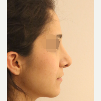 25-34 year old woman treated with Rhinoplasty after 3522500