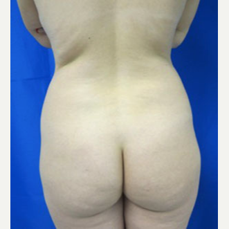 Liposuction before 3094210