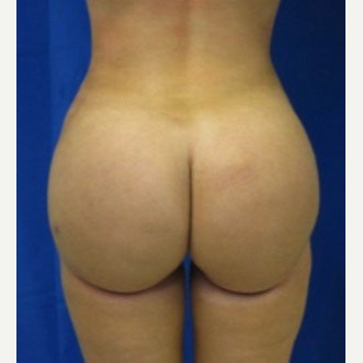 Liposuction after 3094210