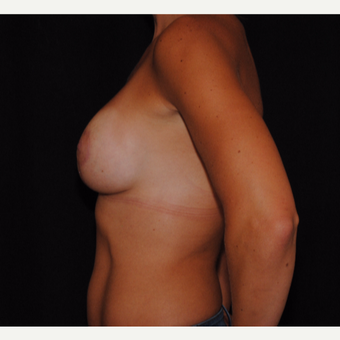25-34 year old woman treated with Breast Lift with Implants after 3300366