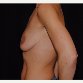 25-34 year old woman treated with Breast Lift with Implants before 3300366