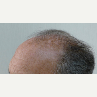 55-64 year old man treated with Hair Transplant before 3371871