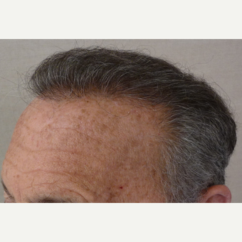 55-64 year old man treated with Hair Transplant after 3371871