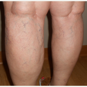 65-74 year old woman treated with Vein Treatment before 3161473
