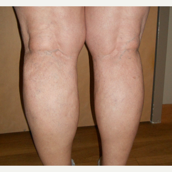 65-74 year old woman treated with Vein Treatment after 3161473
