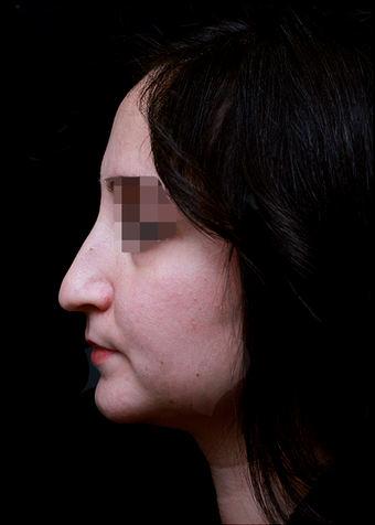 25-34 year old woman treated with Rhinoplasty before 3204743