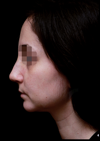 25-34 year old woman treated with Rhinoplasty after 3204743