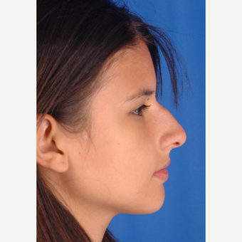 22 year old woman treated with Rhinoplasty before 3220491