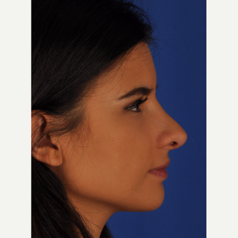 22 year old woman treated with Rhinoplasty after 3220491