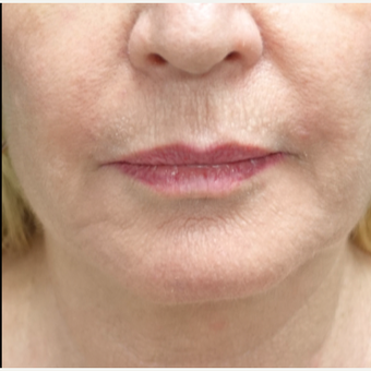 55-64 year old woman treated with Fat Transfer for her Lip Augmentation before 3130007