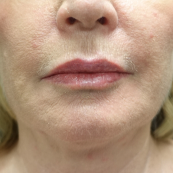 55-64 year old woman treated with Fat Transfer for her Lip Augmentation after 3130007