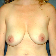 32 year old woman treated with Breast Lift with Implants before 3665910