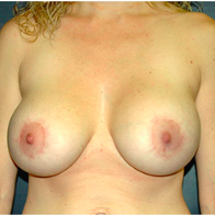 32 year old woman treated with Breast Lift with Implants after 3665910