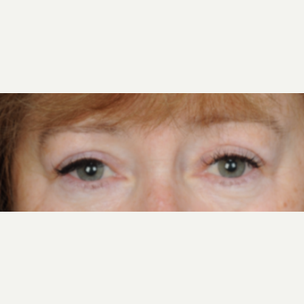 60 year old woman treated with Eyelid Surgery (upper blepharoplasty) after 3839729