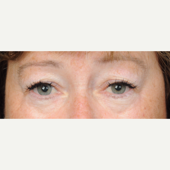 60 year old woman treated with Eyelid Surgery (upper blepharoplasty) before 3839729