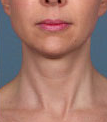 Woman treated with Kybella after 2061774