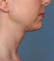 Woman treated with Kybella 2061774