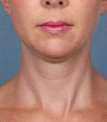 Woman treated with Kybella before 2061774