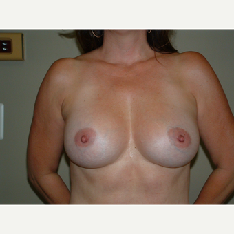 25-34 year old woman treated with Breast Implants after 3124946