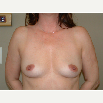 25-34 year old woman treated with Breast Implants before 3124946