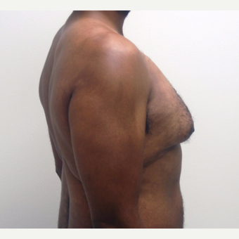 35-44 year old man treated with Male Breast Reduction before 3382424