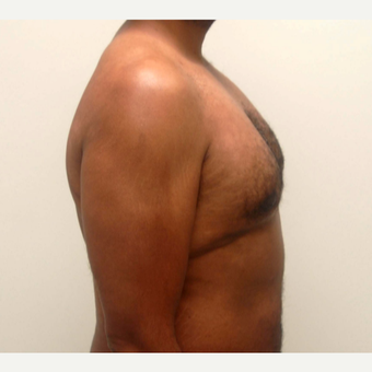 35-44 year old man treated with Male Breast Reduction after 3382424