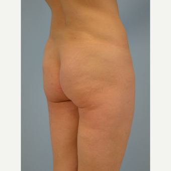 43 year old woman treated with Brazilian Butt Lift before 3432363