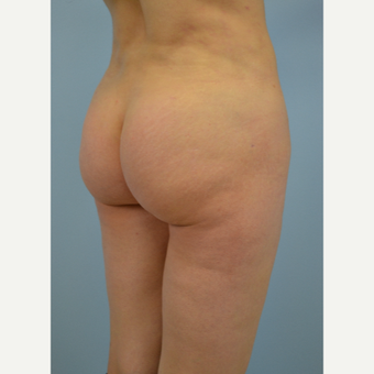 43 year old woman treated with Brazilian Butt Lift after 3432363