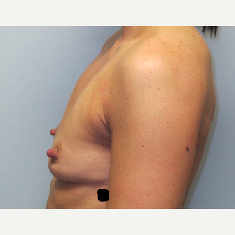 35-44 year old woman treated with Breast Augmentation before 3185811