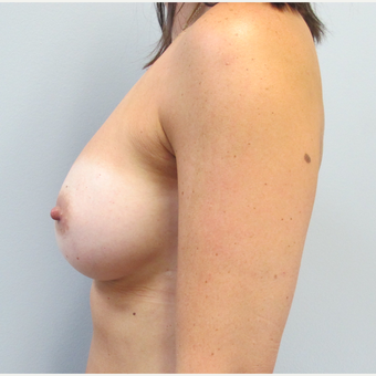 35-44 year old woman treated with Breast Augmentation after 3185811